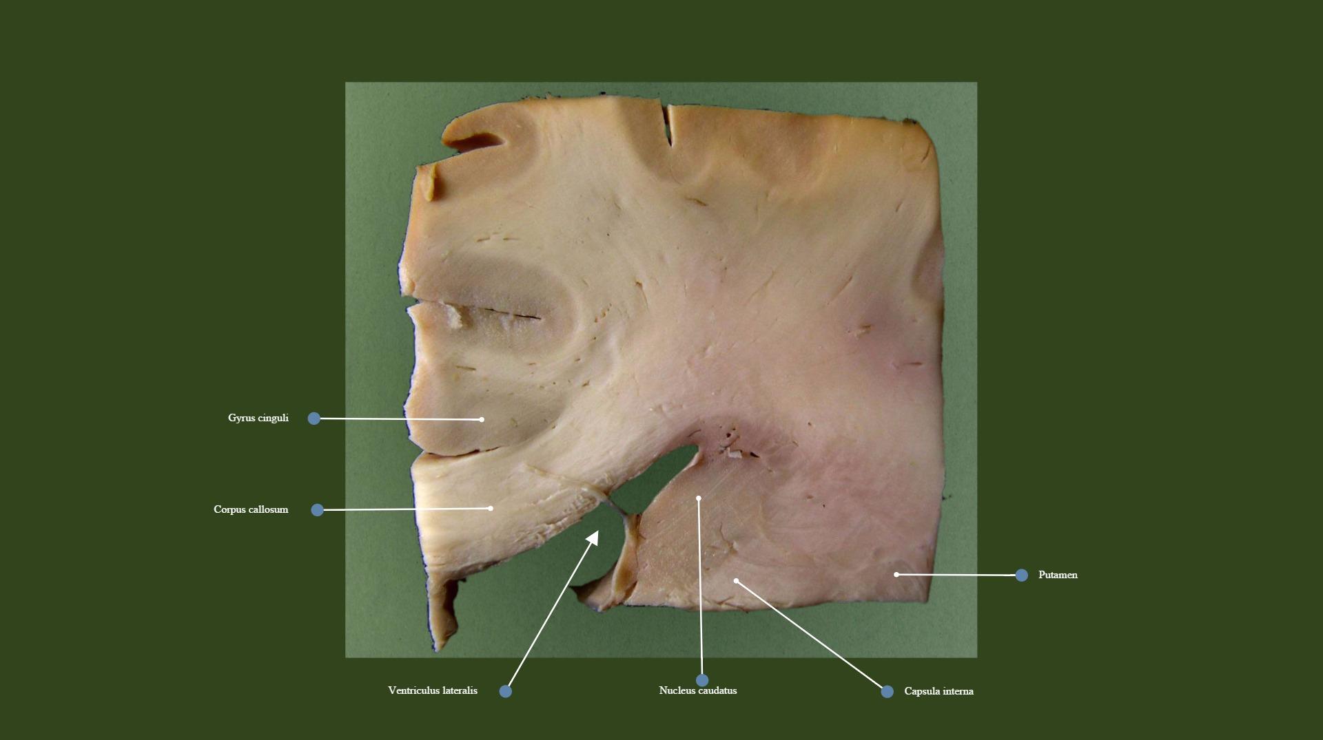 Caudatum, corpus callosum, gyrus cinguli; frontal section