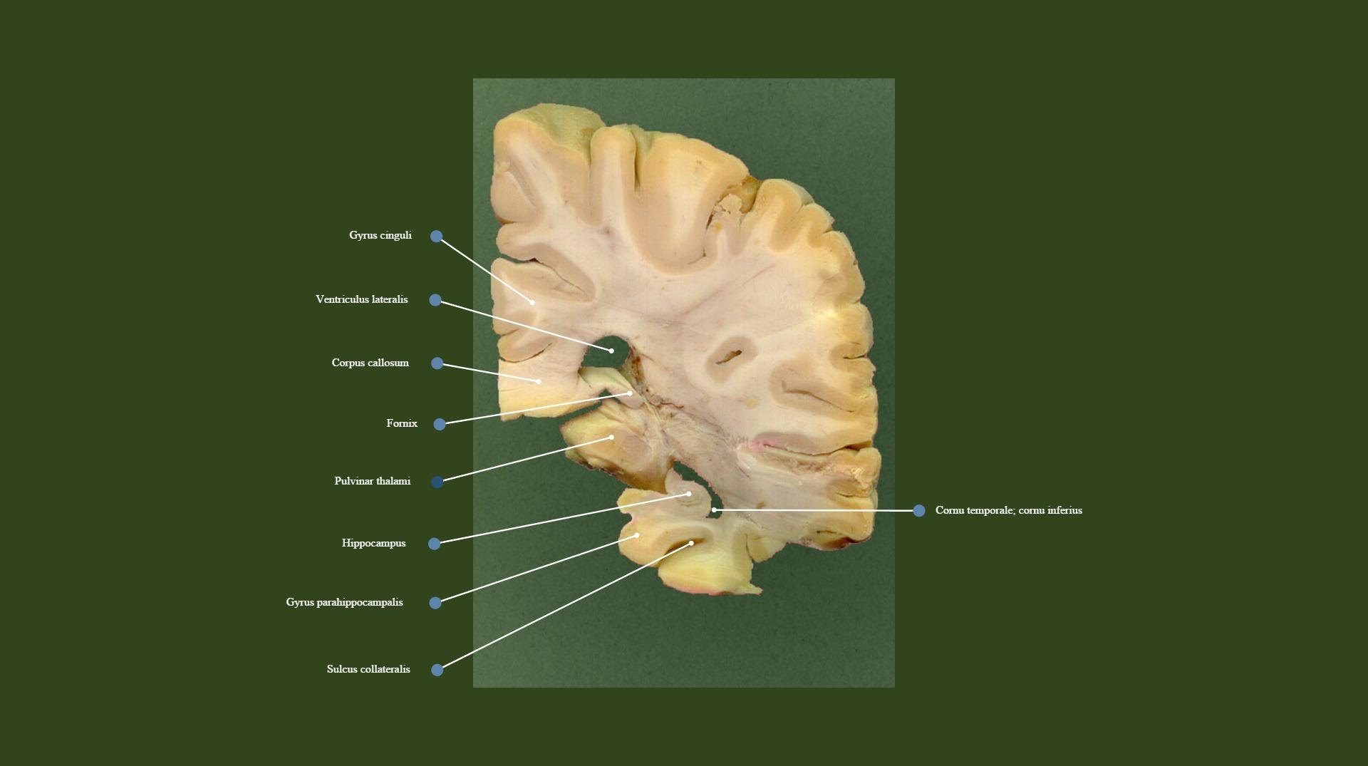 Splenium of corpus callosum