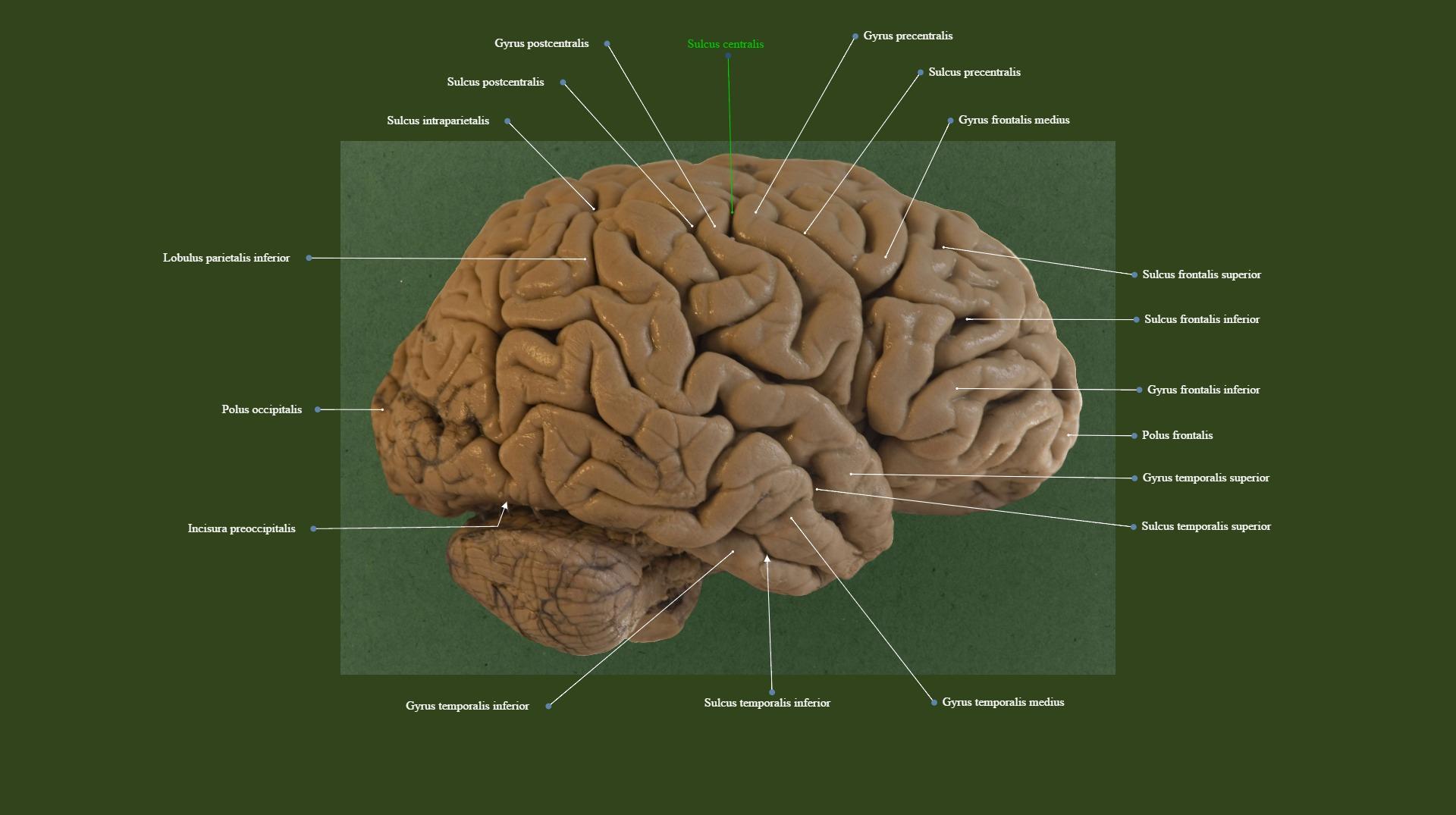Lateral view of telencephalon